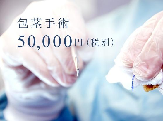 包茎手術50,000円(税別)